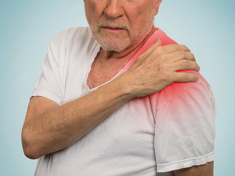 Symptoms of Polymyalgia Rheumatica