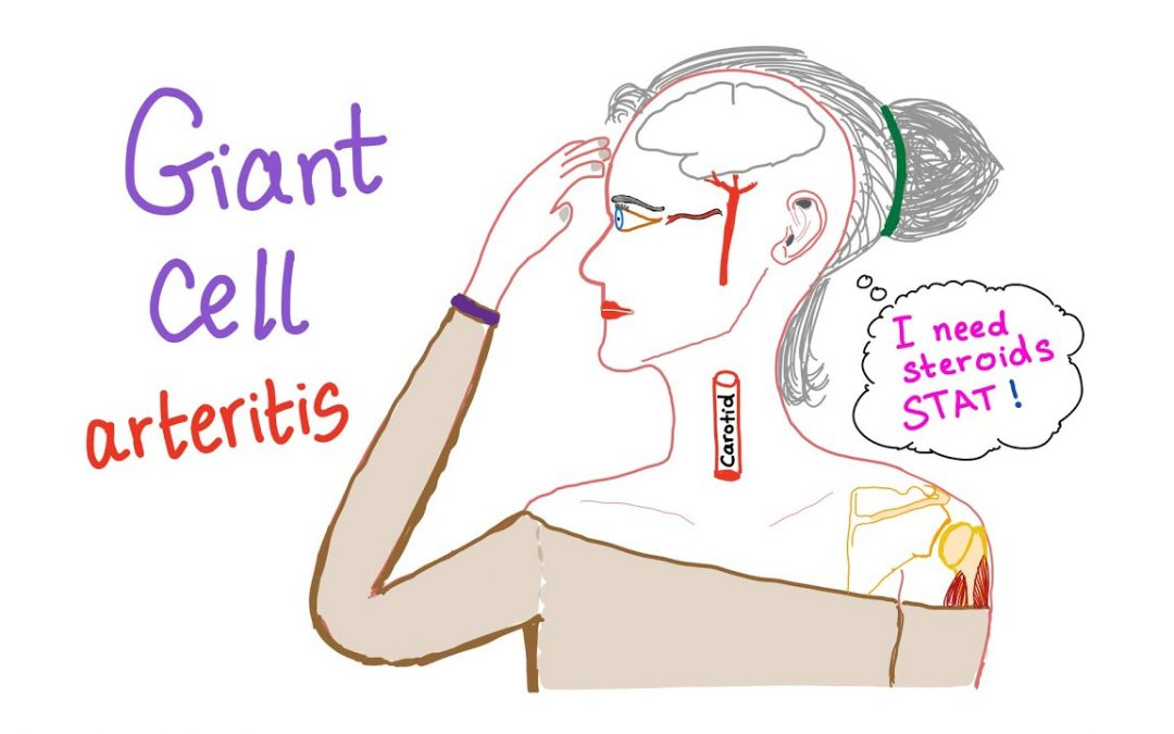 Symptoms of Giant Cell Arteritis